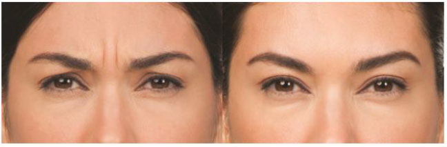 Botox patient before and after photo