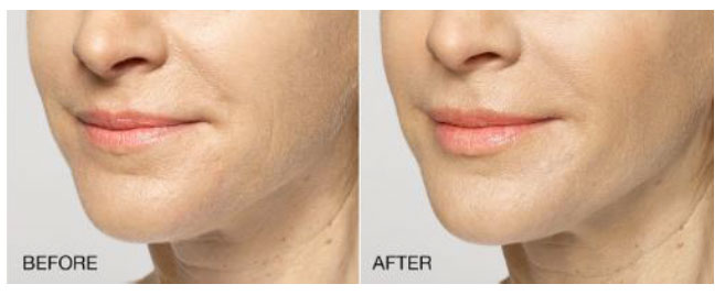 patient before and after results for Restylane Silk