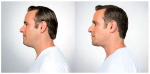 Before & after male patient results for Kybella procedure
